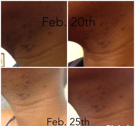 Skin Resuls after 2 weeks