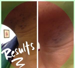 Skin results